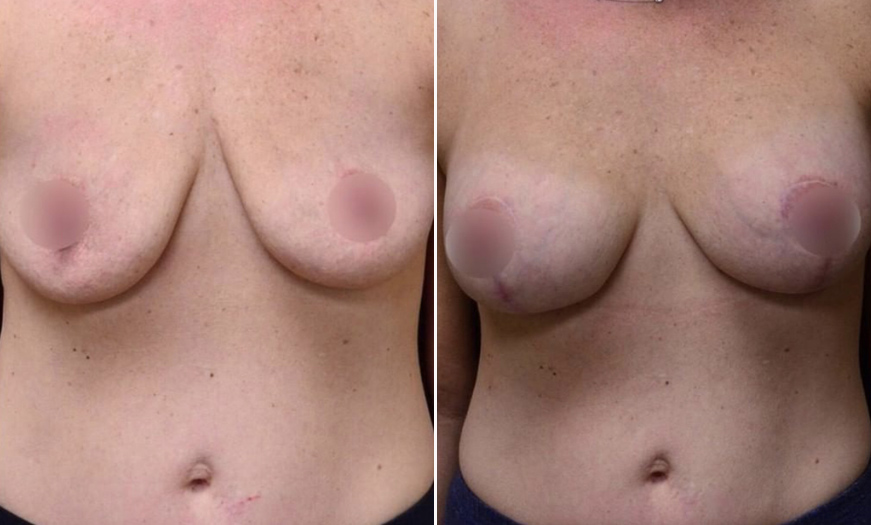 New Jersey Breast Reduction Before And After