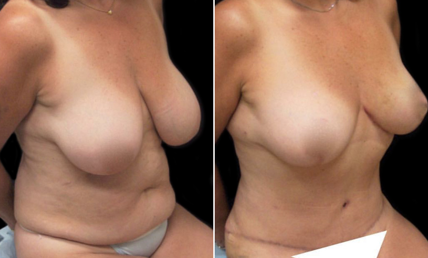 New Jersey Breast Reduction Before & After
