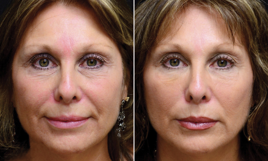Cosmetic Injections Results