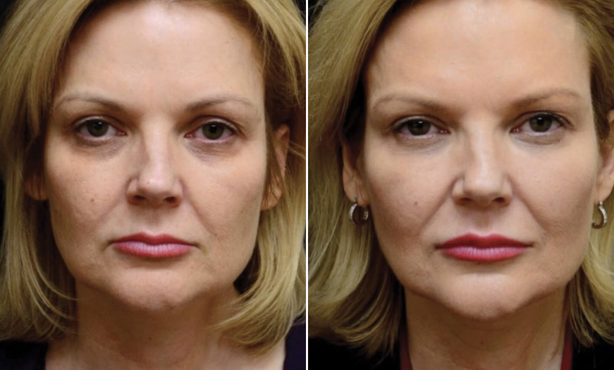 Before & After Dermal Fillers