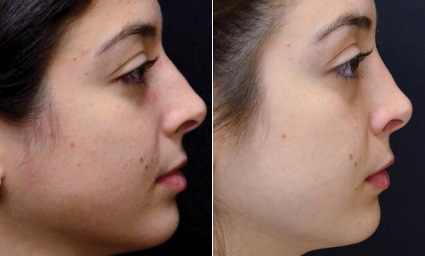 NJ Rhinoplasty Before & After