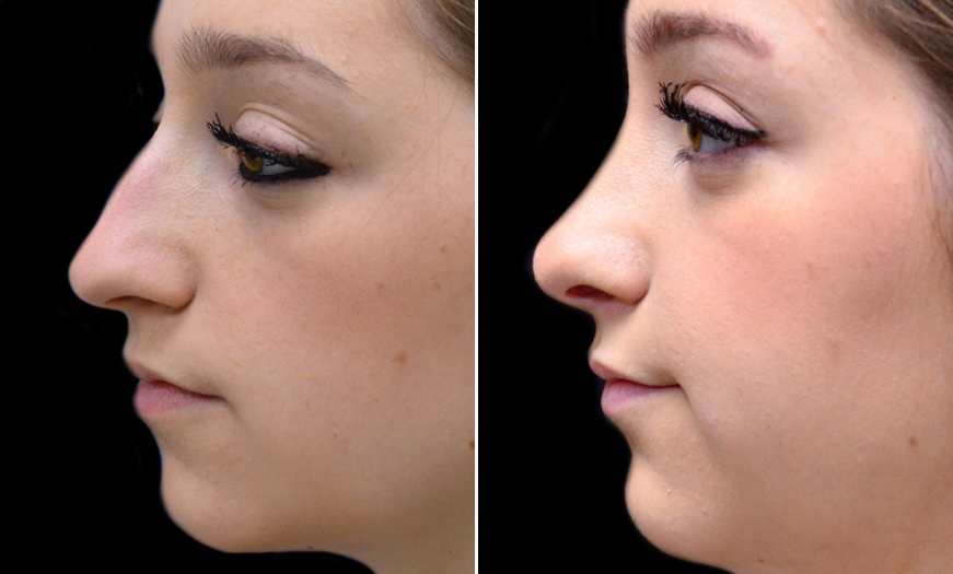 Before & After Rhinoplasty In NJ