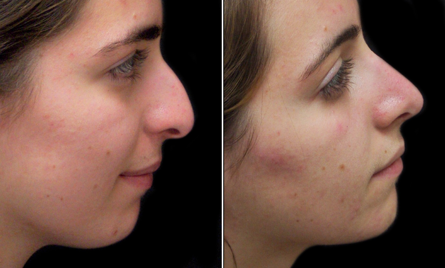 New Jersey Rhinoplasty Before And After