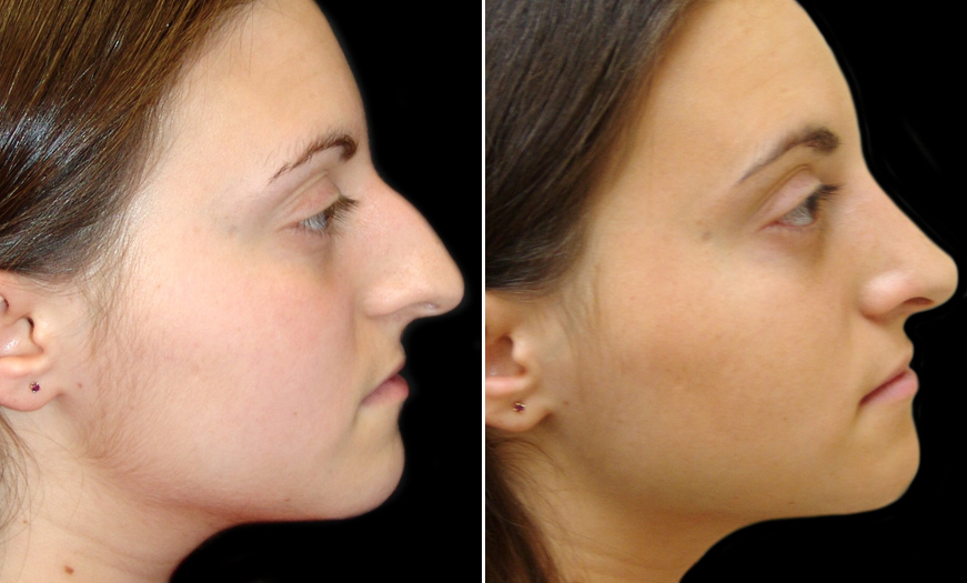 New Jersey Rhinoplasty Before & After