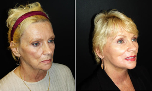 Neck Lift Results